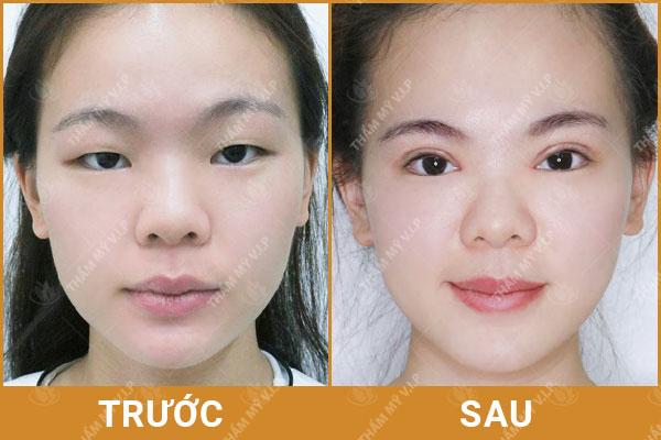 Nâng mũi có ảnh hưởng gì không? Nâng mũi ở đâu an toàn Nang-mui-co-anh-huong-gi-khong