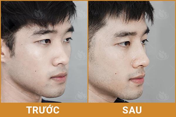 Sự khác biệt về nâng mũi cho nam giới